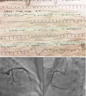 imagen-tako-cardiologia (1)
